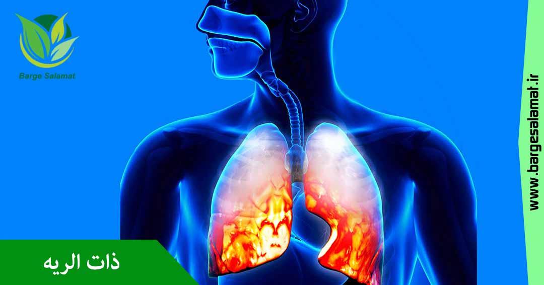 درمان برونشیت - ذات الریه